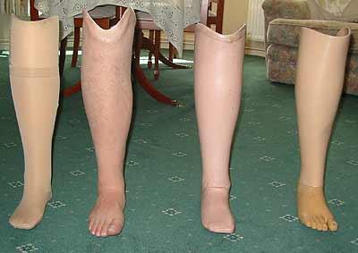 Как сделать протез ноги своими руками в домашних условиях