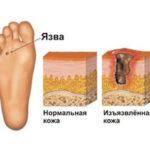 Жжение в ноге после ампутации ноги