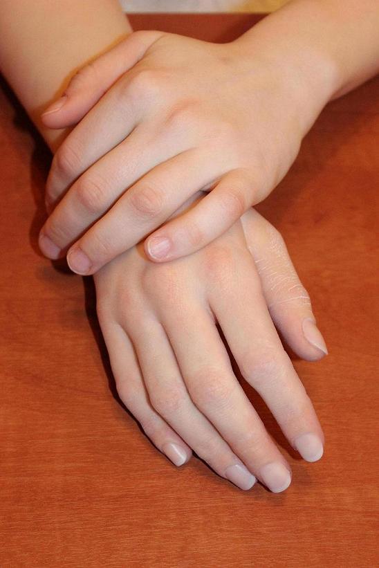 Косметические протезы рук с силиконовыми оболочками SILAB