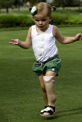 Протезирование конечностей у детей
