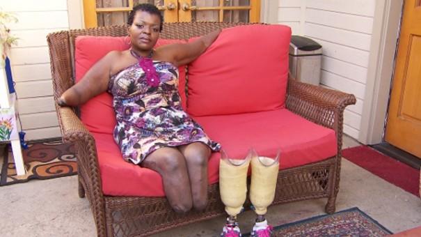 Жительница Лос-Анджелеса лишилась рук и ног после операции по установке имплантов