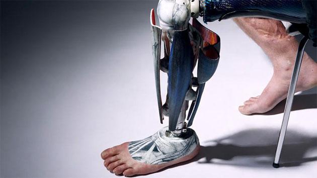 Бывший солдат Райан Seary носит косметику, стилизованную под настоящие мышцы, которая надевается на его протез ноги