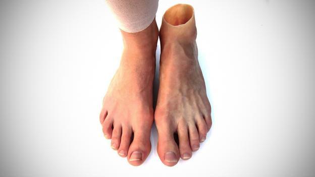 20140128 104954 813 Владельцы протезов больше не довольствуются стандартной заменой