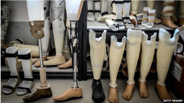 140811135435_prosthetics_artificial_leg_624x351_getty_nocredit