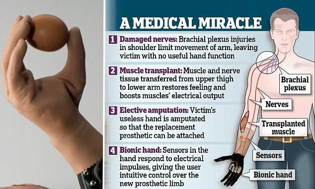 bionic arm graph